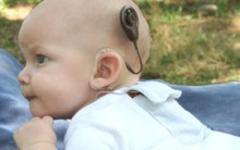 Implante Coclear: Entenda O Que é e Quando é Indicado