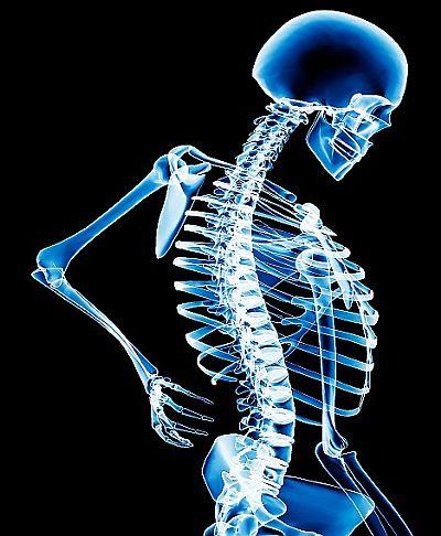 osteoporose Osteoporose: Tudo sobre Sintomas, Prevenção, Diagnóstico e Tratamento
