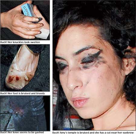amy winehouse1 Amy Winehouse está Morta: Fotos da Carreira, Antes e Depois da Cantora