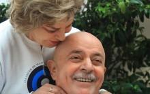 Lula Raspa Careca: Marisa Corta Cabelos do Ex Presidente Doente Fotos