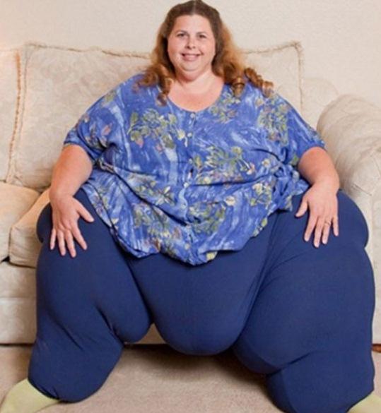 mulher mais obesa do mundo 330kg Fotografia da Mulher Mais Gorda do Mundo   Obesa com 330kg   Confira