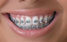 Tipos de Aparelhos Odontológicos: Problemas Dentários, Como Higienizar