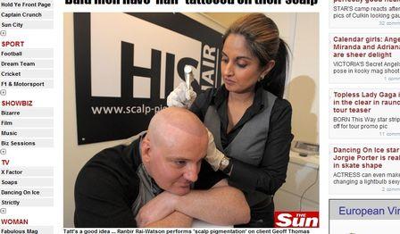 Tatuagem Na Careca Que Imita Cabelo Como Disfarçar Calvicie