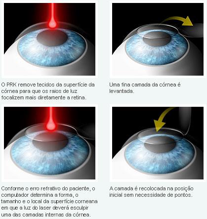 O que ajuda de hypostases de olhos melhor