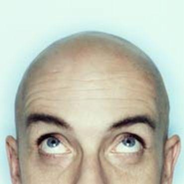 homem careca Tatuagem na Careca que Imita Cabelo: Como Disfarçar Calvicie Vantagens