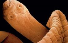 Teníase e Cisticercose: Doenças Tênia, Profilaxia, Tratamento e Tabela