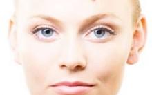 Espinhas Como Tratar: Causas da Acne, Tratamento, Higienização da Pele