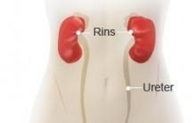 Infecção Urinária Constante, de Repetição, Como Cuidar, Evitar