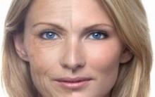 Lifting facial: Anestesia, Procedimento Usado, Tempo de Recuperação