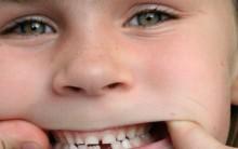 Tratamento Dentário Gratuito – Projeto Oferece Dentista Grátis Para Jovens, Site para Informações