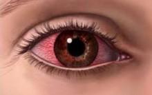 Alergia Ocular – Como Evitar Coceira nos Olhos