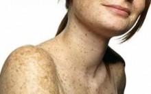 Tratamento Caseiro para Sardas, Manchas e Rugas na Pele