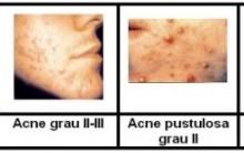 Zinco para Tratamento da acne – Dicas de Cuidados da Pele