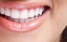 Causas dos Dentes Manchados – Dicas de Tratamento e Prevenção das Manchas nos Dentes