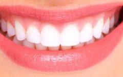 Gengivas Retraídas – Causas e Cuidados para Evitar Afastamento e Raiz do Dente Exposta