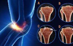 Novo Tratamento para Artrose – Subcondroplastia – Como é Feito e Benefícios
