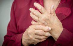 Artrite reumatóide: Causa, Sintomas, Exames, Diagnóstico, Tratamento