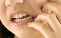 Retirada do Dente do Siso: Como É, Pós-operatório, O que Comer e Remédios